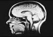 Limitele neurostiintelor in explicarea mintii si constiintei umane